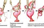 Хронический гидросальпинкс маточной трубы