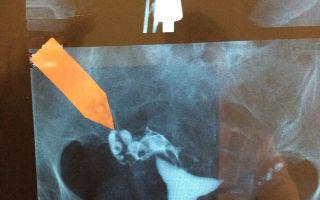 С чего начать лечение при непроходимости труб