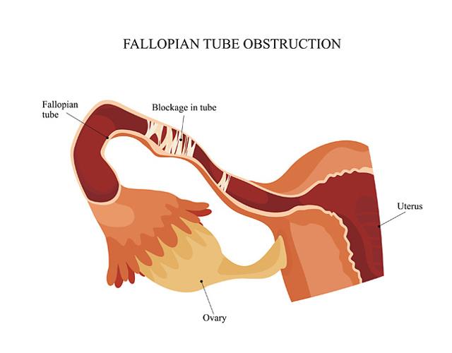 Симптом органных труб это