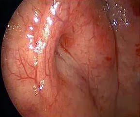 Как лечат дисфункцию слуховой трубы