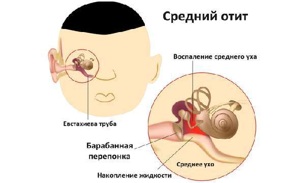 Симптомы при воспаление ушной трубы