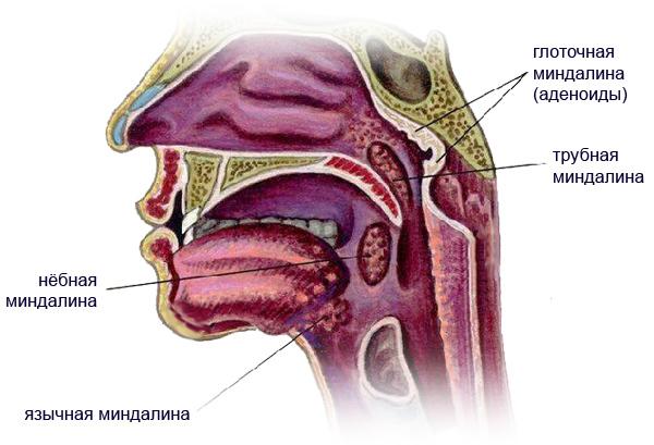 Трубная миндалина как лечить