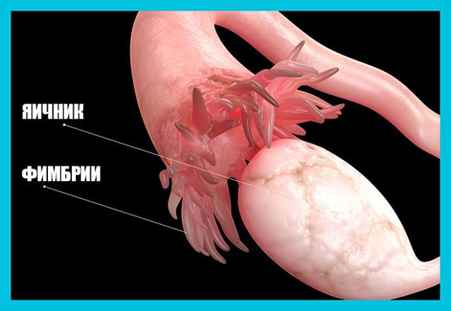 Как забеременеть при гидросальпинксе одной трубы